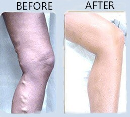 Before After Vein
