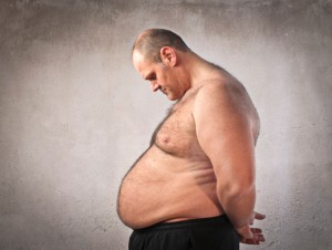 Obesity and Vein Disease