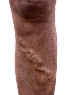 Ugly Leg Veins