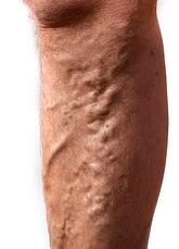 Venous Disease