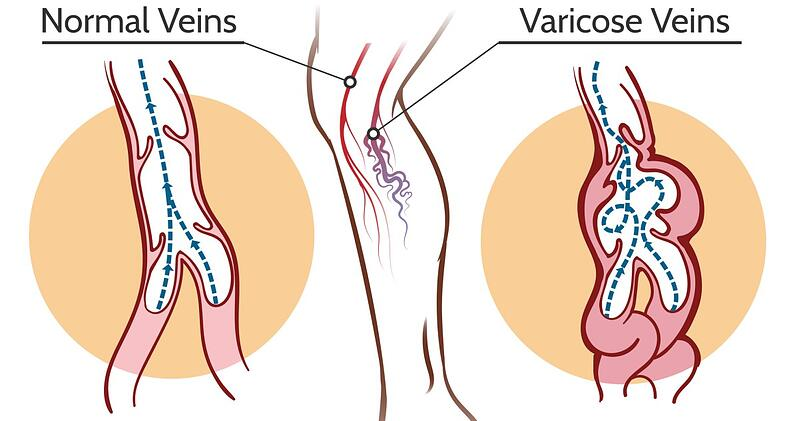Normal vs Varicose Veins